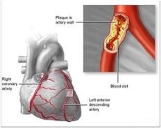 jantung koroner, obat jantung koroner